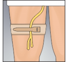 Image for Urocare Catheter Tubing Strap
